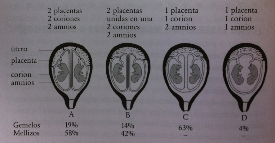 Tipos embarazo multiple segun placenta