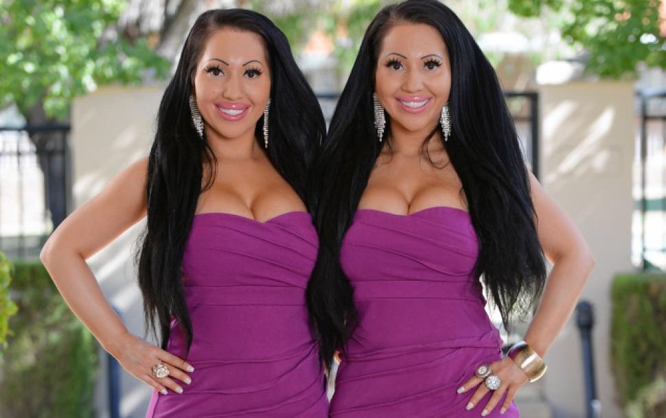 Las gemelas Decinque después de sus múltiples operaciones